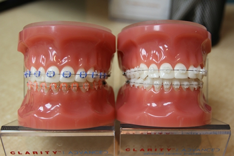 Clarity™ Ceramic Brackets | Dentist | Pershing Orthodontics | Tri-City NE