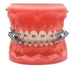 Forsus Headgear for over and under bite correction from Pershing Orthodontics