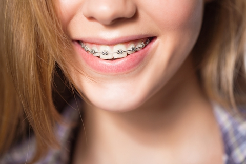 Braces | Dental | Retainers | Dentist | Pershing | Tri-City | Central City | Alda | NE